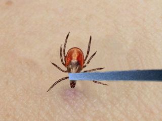 Tick-Removal-3